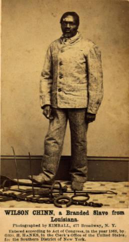 M. H. Kimball, עבד מסומן בצריבת ברזל מלובן על מצחו, לואיזיאנה, 1863.  Swarthmore College המצולם, Wilson Chinn, כבן 60, היה עבד של Volsey B. Marmillion, בעל מטעי סוכר בקרבת ניו אורלינס שנהג לסמן את עבדיו בברזל מלובן בראשי התבות של שמו. למרגלות המצולם שלשלותיו. 105 מכלל 210 עבדיו של מרמיליון נמלטו יחד והגיעו למחנה צבא האיחוד. 30 מהנמלטים נמצאו צרובים, ארבעה במצחם והיתר על זרועם וחזם.